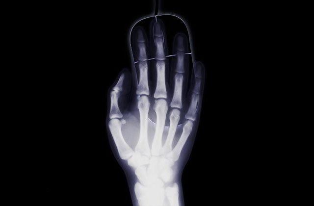 Сколько раз можно делать рентген с целью профилактики и диагностики