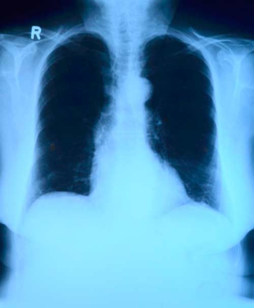 Исследование грудной клетки