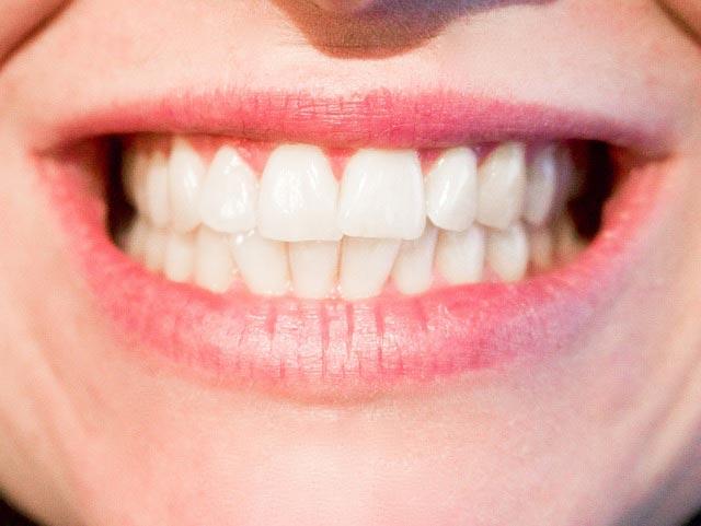 Как лечатся коренные зубы у